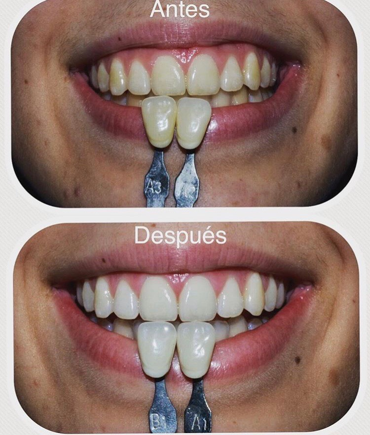 Blanqueamiento dental tipos